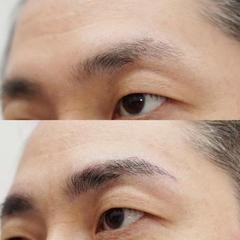 メディカルタトゥーによる男性の眉のメイクアップ