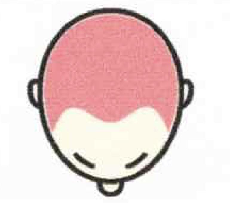 メディカルタトゥー頭皮の料金表5